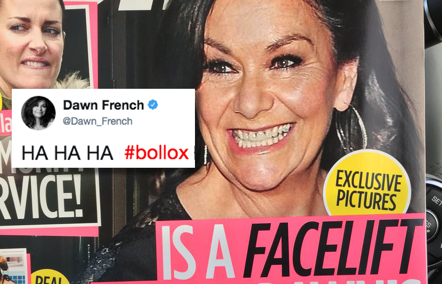 """Bollox!"": Dawn French's hilarious response to magazine's facelift claim"