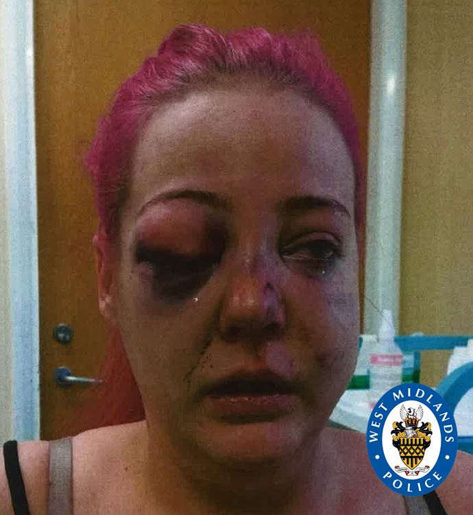 A bruised and battered Danielle Perry attacked by This is the car window Leon Thompson