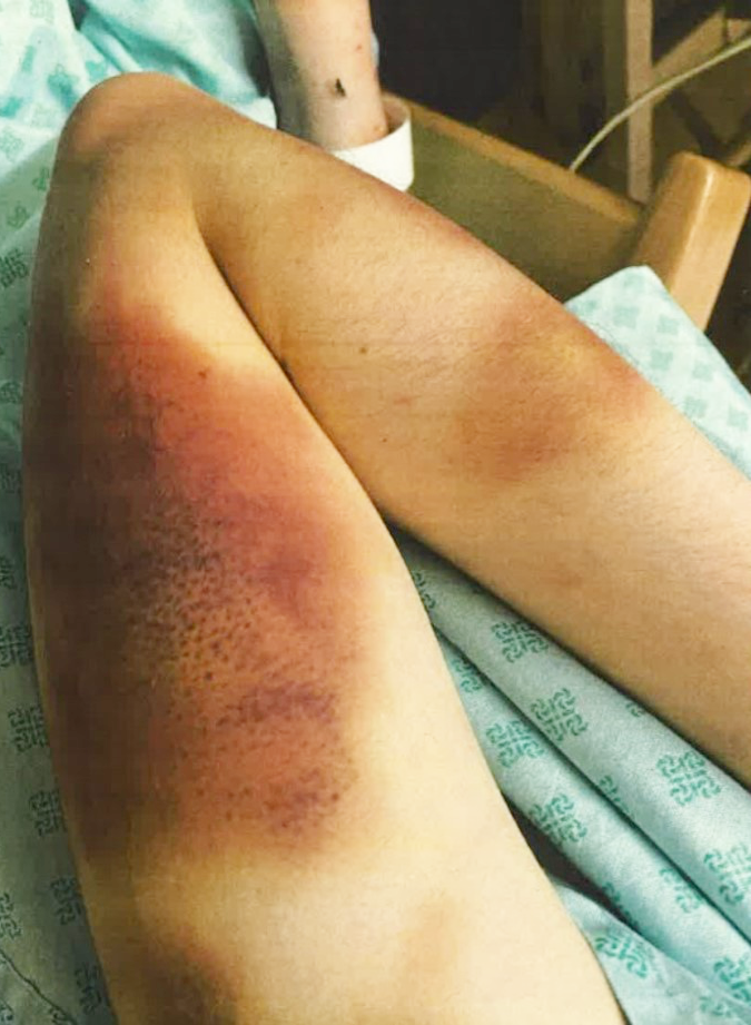 These photos, released with consent from the victim, show the extent of her injuries at the hands of Rory Farrell