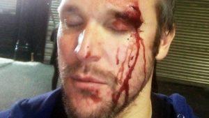 Man arrested over homophobic Birmingham Gay Village attack