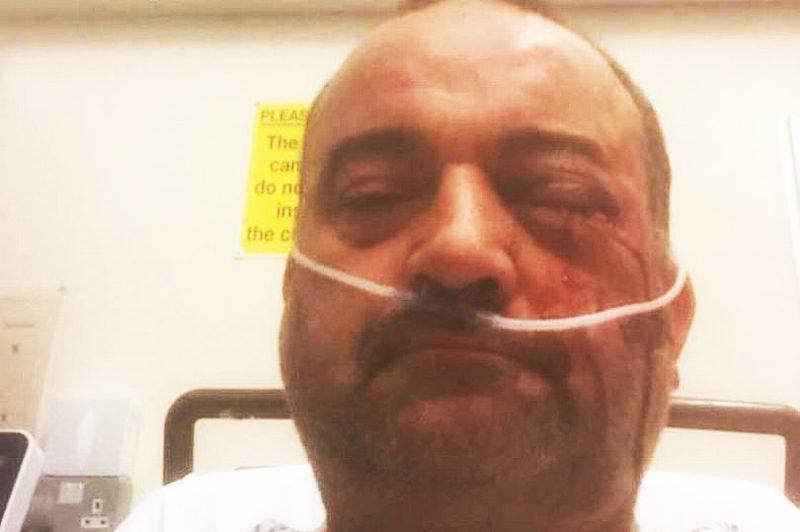 Matt Brooks was beaten in an unprovoked attack in Birmingham's Gay Village
